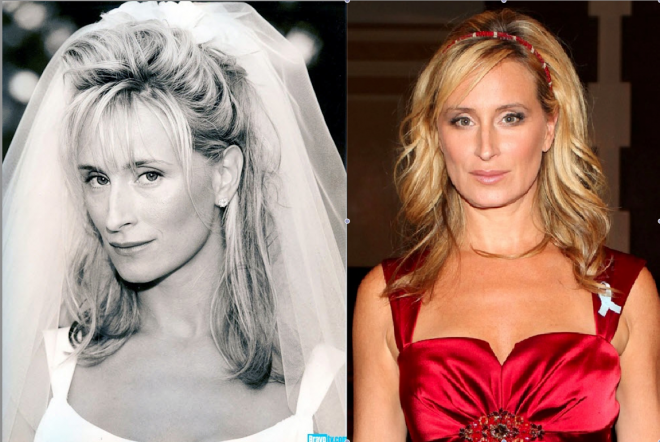 sonja-morgan-plastic-surgery